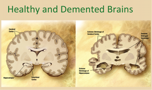 Healthy and Demented Brains
